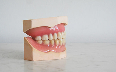 7 common teeth alignment issues; which do you have?